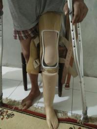 kaki palsu pas lutut